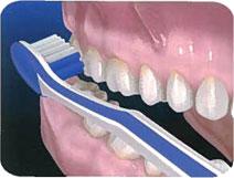 Tecnicas de higiene oral. Cepillo Manual