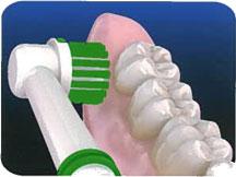 Tecnicas de higiene oral. Cepillo Eléctrico