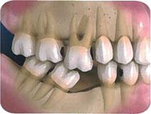 Consecuencias de la pérdida de un diente