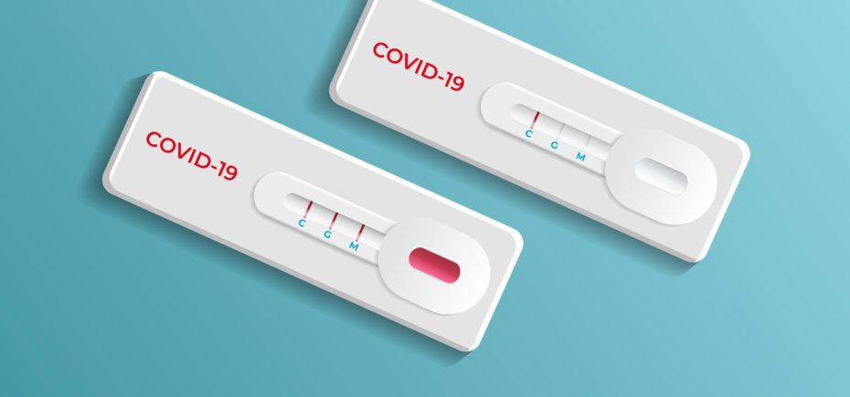 Nueva Campaña De Test Anticuerpos Para Los Colegiados
