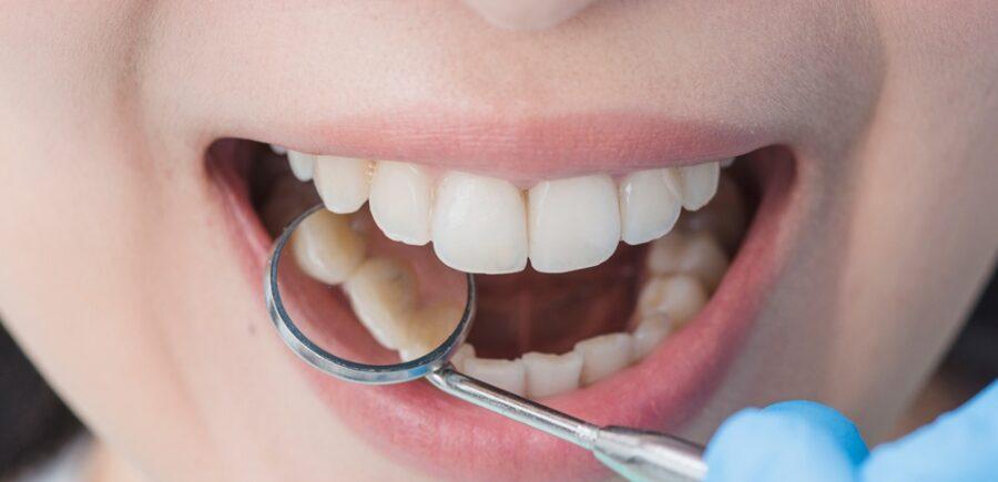 Encuesta De Salud Oral 2020