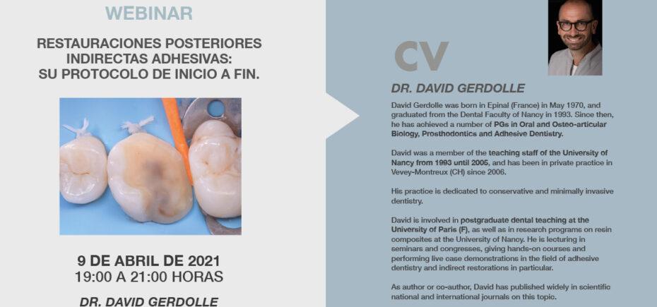 """«Restauraciones Posteriores Indirectas Adhesivas: Su Protocolo De Inicio A Fin"""", Temática Del Webinar Del 9 De Abril"""